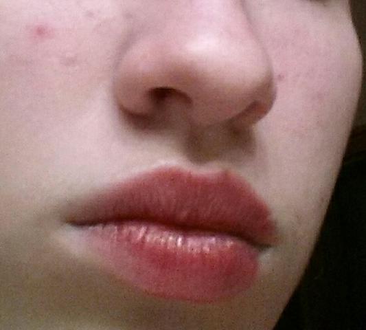 Meine Lippen - (Beauty, Kosmetik, Allergie)