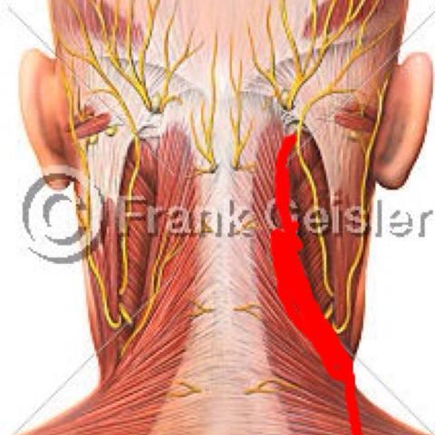 Was wenn die Pickel auf den Schultern und dem Rücken weh tut