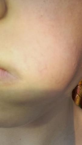 Gesicht(backe) - (Gesundheit und Medizin, Krampfadern, 12y)