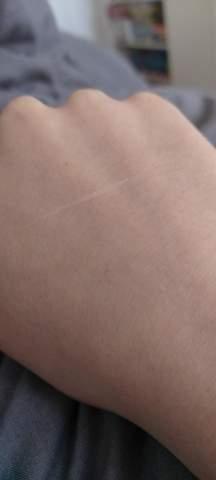 Kratzer, Angst vor Armamputation!?