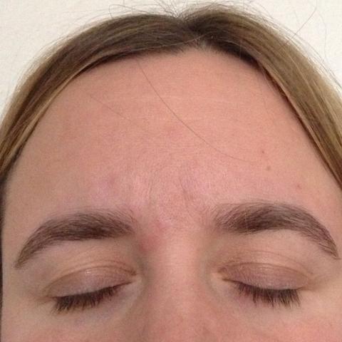 Kreisrunder Haarausfall augenbrauen