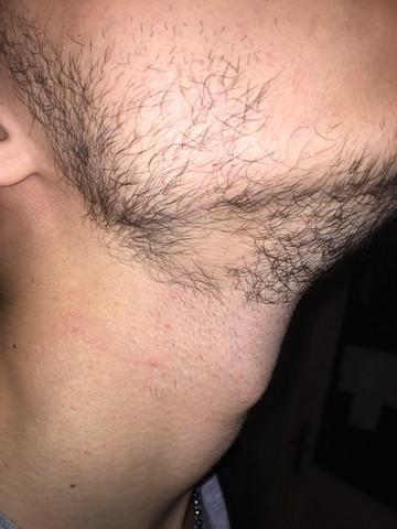 Kreisrunder Haarausfall Bart