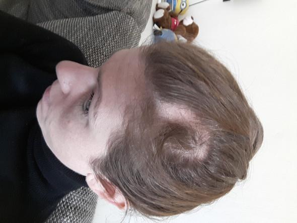 Kreisrunder Haarausfall Wächst Nicht Vollständig Zu