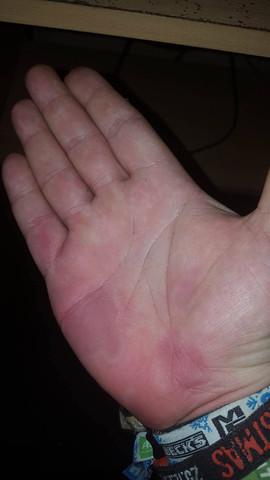 Rechte Hand - (Hand, Kribbeln)