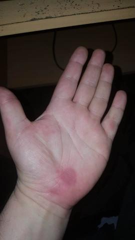 Linke Hand - (Hand, Kribbeln)