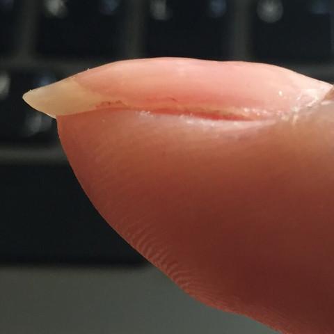 Das ist eine der Nägeln  - (Gesundheit, Medizin, Beauty)
