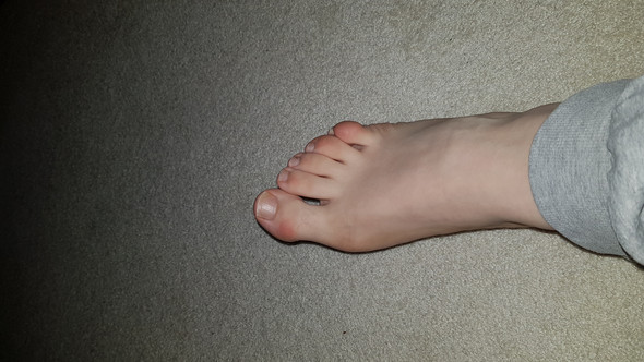 Krumme Zehen: Kann man diese korrigieren lassen (Foto