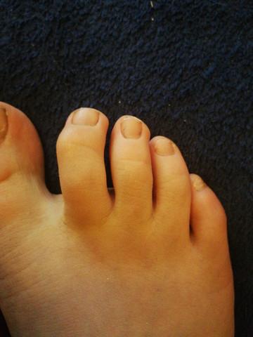 Zehen schiefe Problemzone Füße: