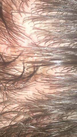 Krusten Auf Kopfhaut Was Ist Das Gesundheit Und Medizin Jucken