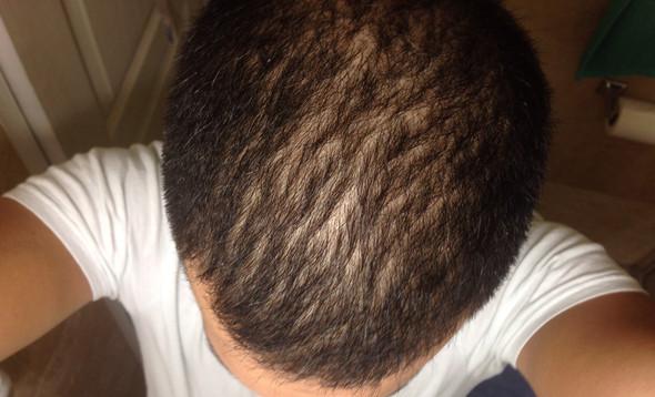 Langfrister Schaden Von Nassem Haare Glätten Haarausfall