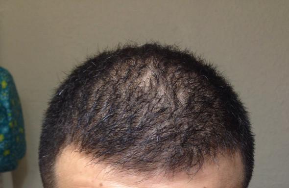 Der Typ hat sich auch die Haare geglättet, weiß aber nicht ob nass oder trocken - (Haare, Haarausfall, Glätteisen)