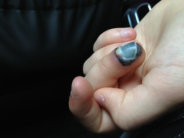 Finger geklemmt nagel blau