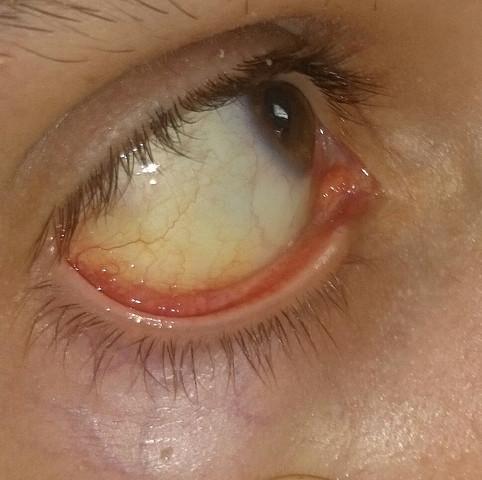 Leicht gelblich - (Gesundheit, Medizin, Augen)