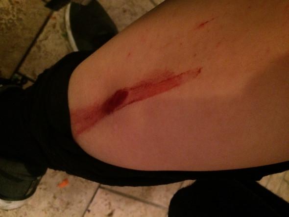Die Verletzung  - (Boeller, offene-wunde)