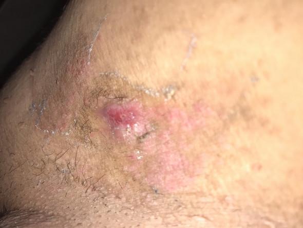 Leistenregion-Hautausschlag/Geschlechtskrankheit