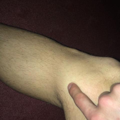 Rechtes Knie  - (Fußball, Knie)