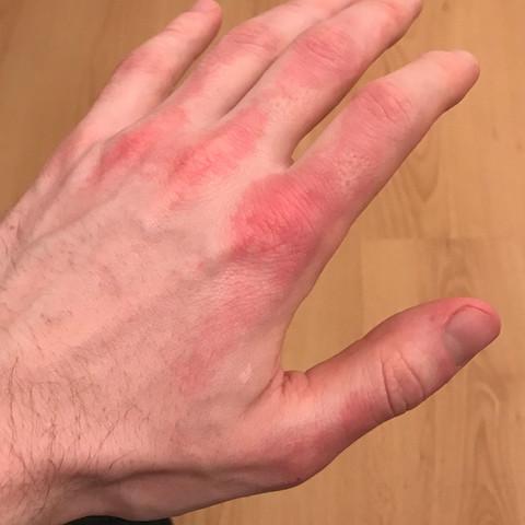 Der hand auf flecken III▷ Die