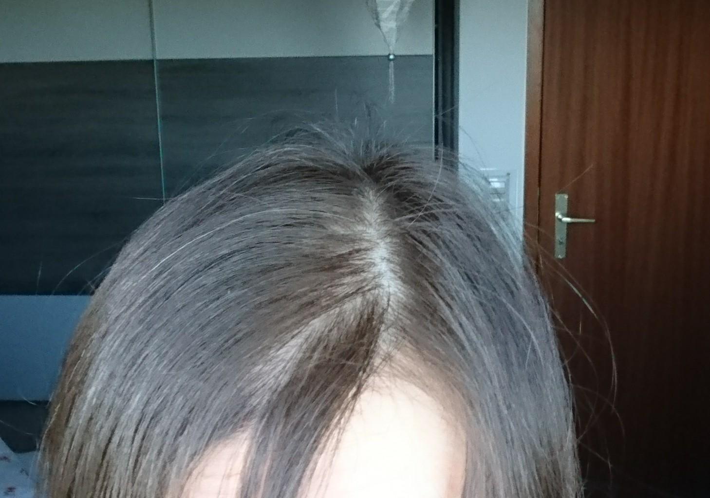 Lichtes Haar Haarausfall Lichtes Haar Geniale Blogger