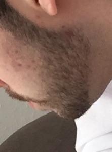 Liebe Damen , wie findet ihr den Bart?