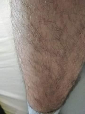Liegt die Starke körperbehaarung am Testosteron?