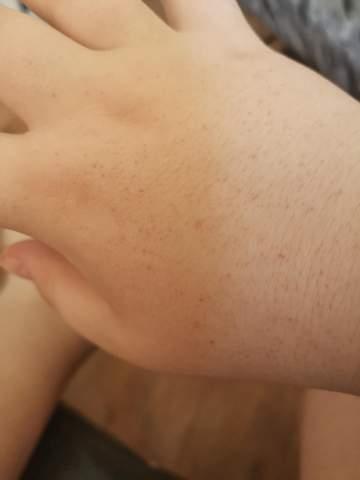 Handinnenseite blauer fleck Schwellungen und