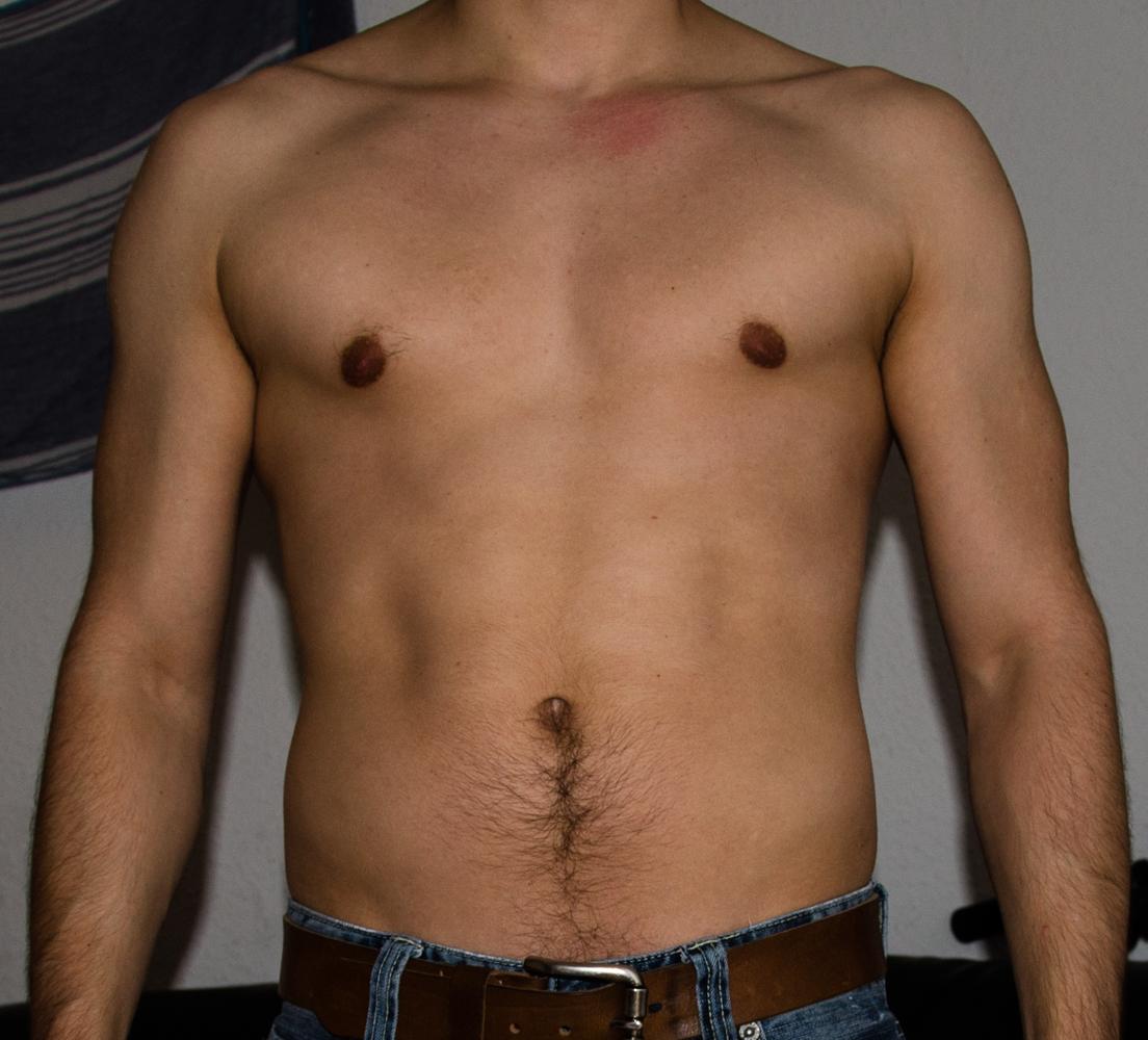 Linke Brust Größer Als Rechte Mann