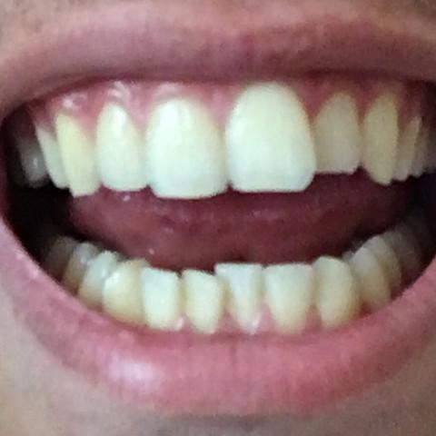 Schiefe Zähne.  - (Zähne, Weisheitszahn, Gebiss)