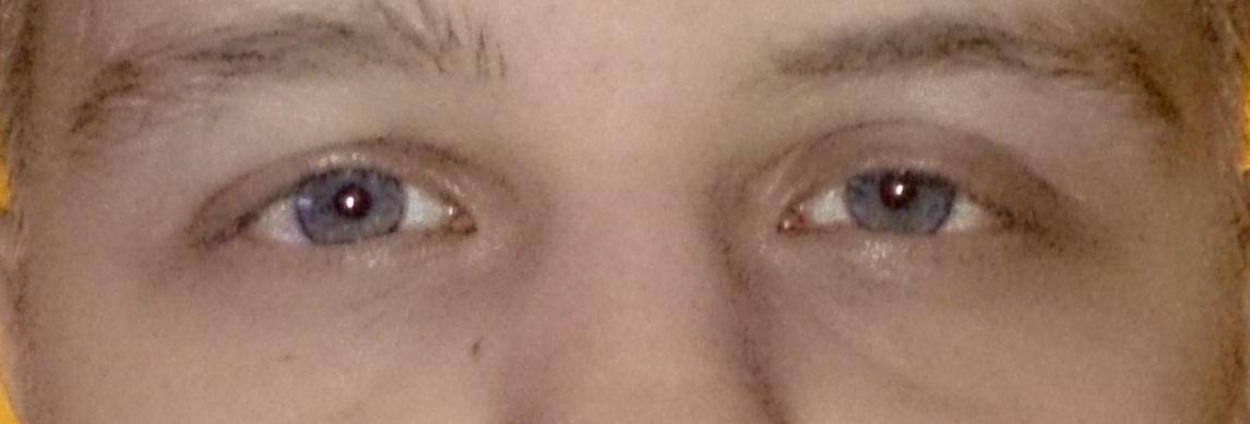 Warum ist mein linkes Auge (Augenlid) geschwollen ? (Augen