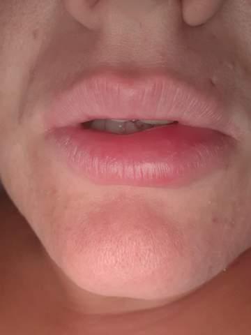 Lippe? (Gesundheit und Medizin, Gesundheit, lippenpflege)