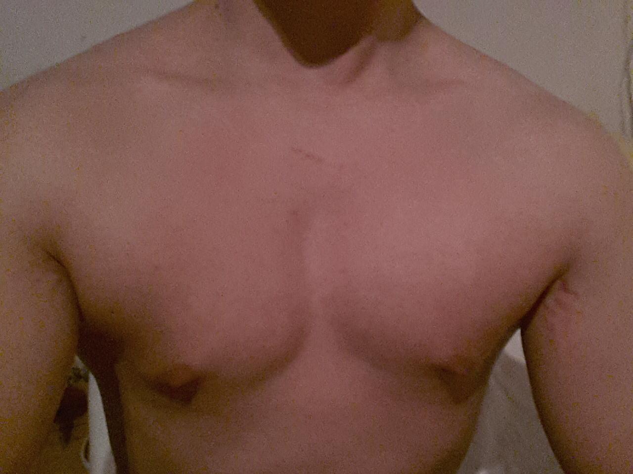 Der Preis der Operation nach der Verkleinerung der Brust in unter nowgorode