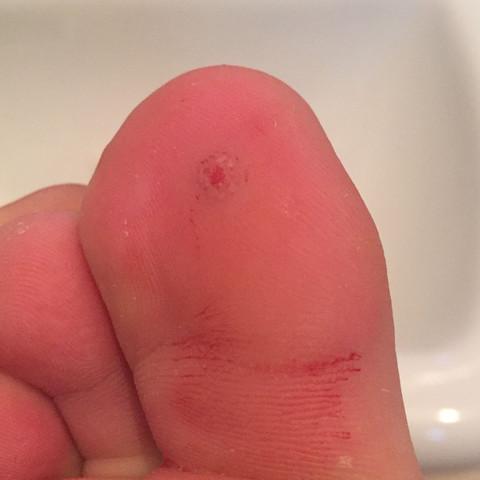 Rechter Fuß (Blut wegen zu stark gerubbelt? ) - (Gesundheit, Füße, Warzen)
