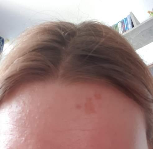 Lockenstab Kopf verbrannt?