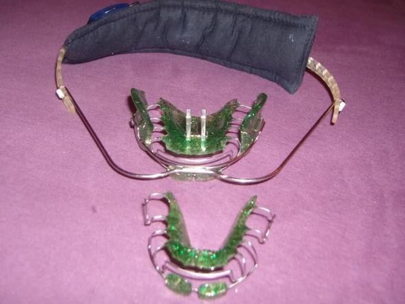 spange 1 - (Zahnspange)