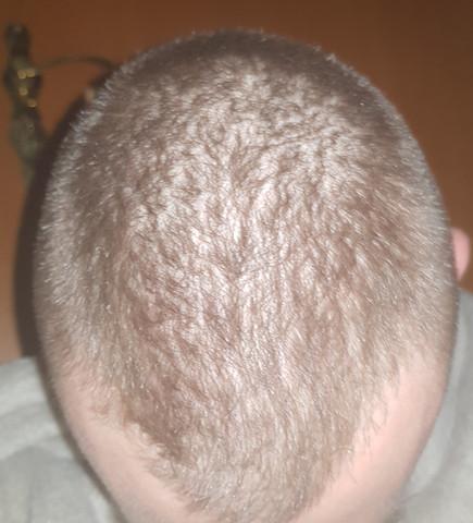 Lohnen Sich Lange Haare Noch Habe Ich Starken Haarausfall Was