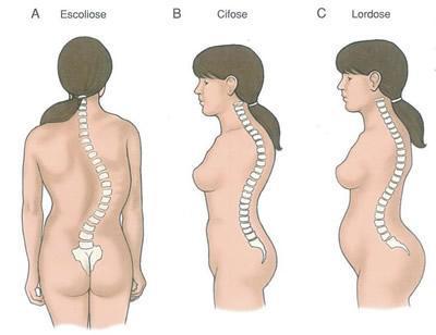 lordose ----> bild ganz rechts - (Bauch, Rücken, hohlkreuz)