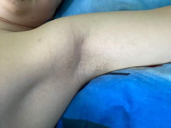 Achsel lymphknotenentfernung Lymphödem: Erhöhtes