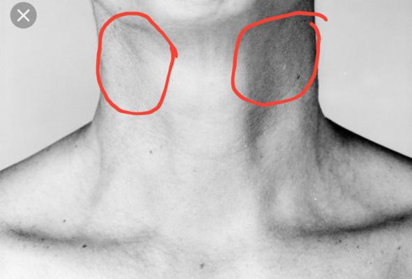 Geschwollen lymphknoten am rechts hals Lymphknoten am