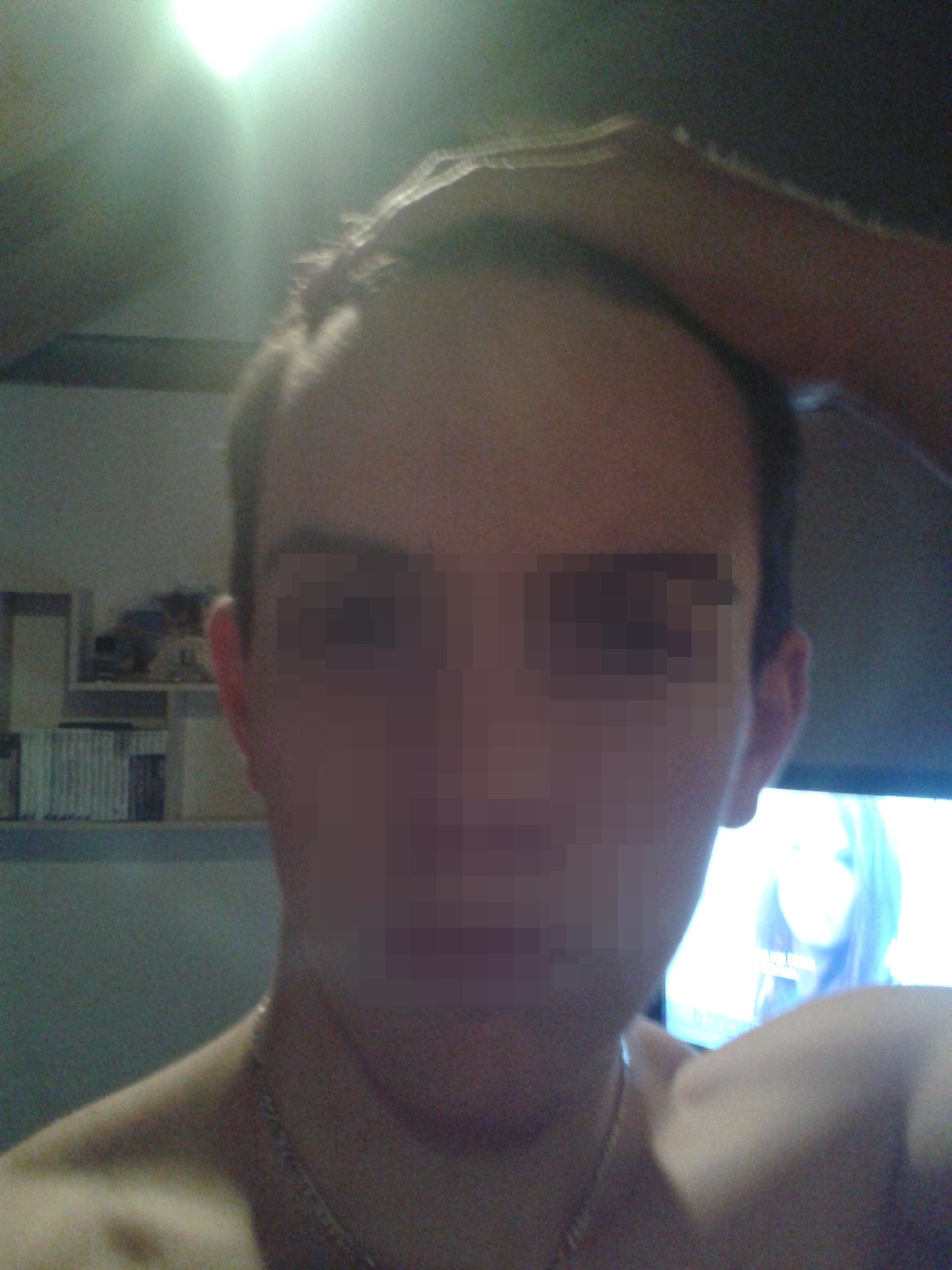 Frisuren geheimratsecken hohe stirn