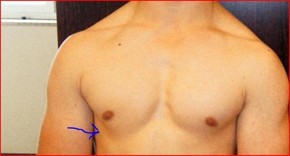 Geschwollene Brustwarze an einer Brust