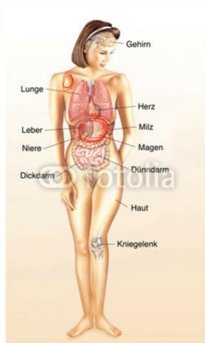 Bild mit eingekreisten schmerzpunkten - (Schmerzen, Magen)