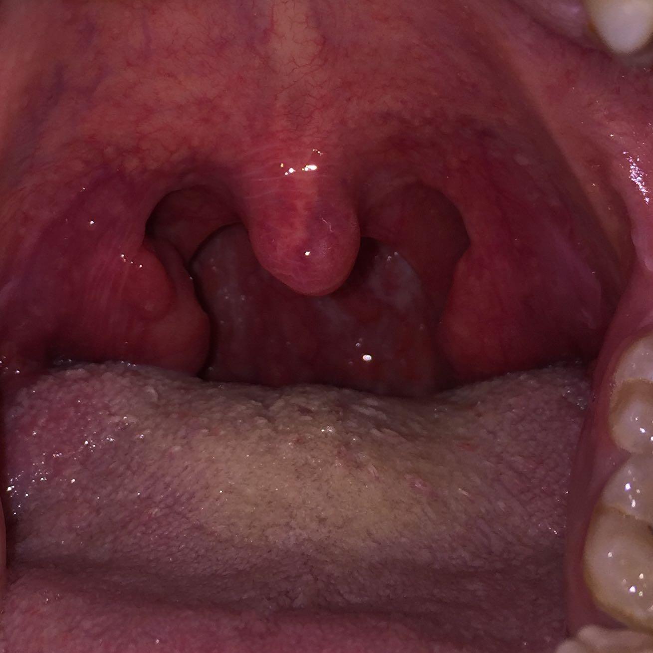 Halsschmerzen Wegbekommen