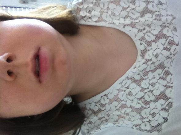 Normal habe ich nicht so einen dicken Hals  - (Arzt, Operation, EntzÜndung)