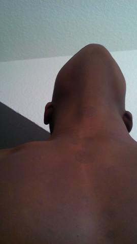 Die Flecken nah meines  halses - (Gesundheit, Haut)