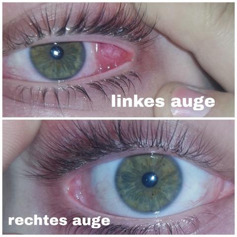 Augenwinkel entzündet innerer Rot, geschwollen,