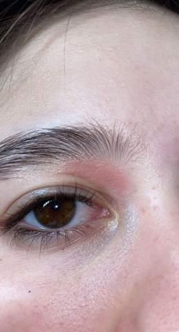 Mein Auge ist rot und rund herum ist es rot und angeschwollen. Was ist das und geht das vonselber weg?