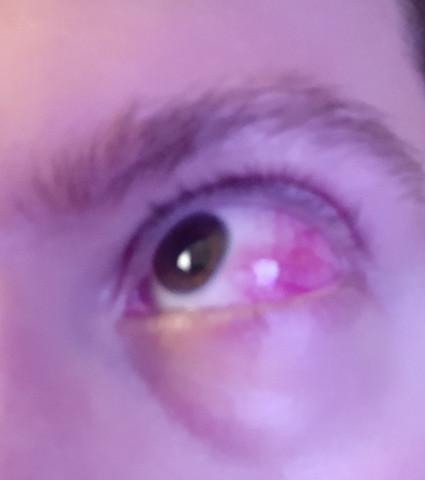 Auge tut weh beim blinzeln