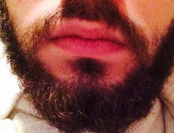Nicht unterlippenbart wächst Dein Bart