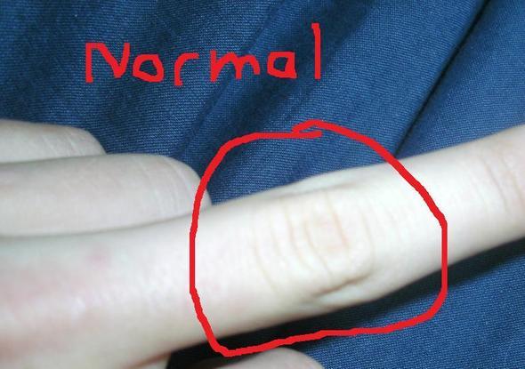 Ungeschwollener Finger - linke Hand - (Medizin, Verletzung, Hand)