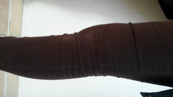 Geschwollenes Knie :/ - (Knie, Schwellung, Überlastung)