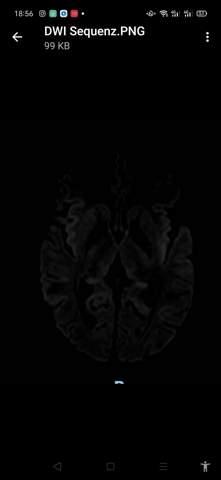 Mein MRT Frage Gehirn?